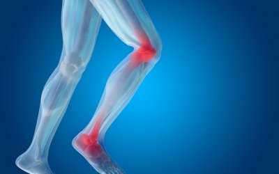 Massage Therapy at Lacey + Quality of life in Patients with Osteoarthritis of the Knee