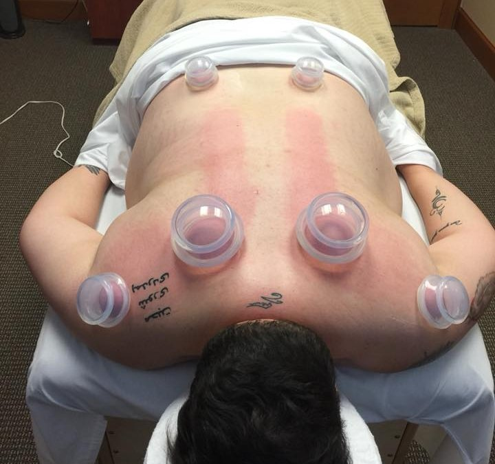 Why Would I Need Cupping?